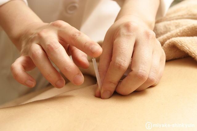 トリガーポイント鍼療法