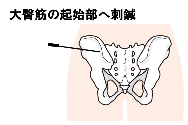 大臀筋の刺鍼
